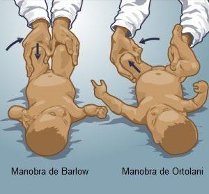 Foto 2 - Exame de movimentos simples identifica doença que pode comprometer os movimentos do bebê